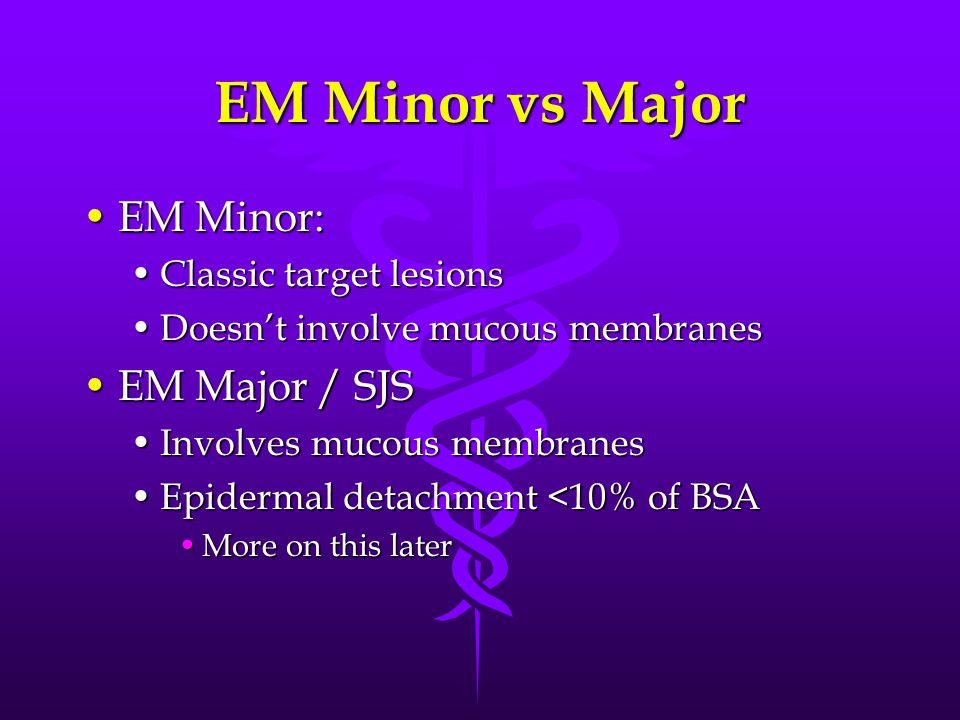 EM Minor vs Major EM Minor:EM Minor: Classic target lesionsClassic target lesions Doesn't involve mucous membranesDoesn't involve mucous membranes EM Major / SJSEM Major / SJS Involves mucous membranesInvolves mucous membranes Epidermal detachment <10% of BSAEpidermal detachment <10% of BSA More on this laterMore on this later