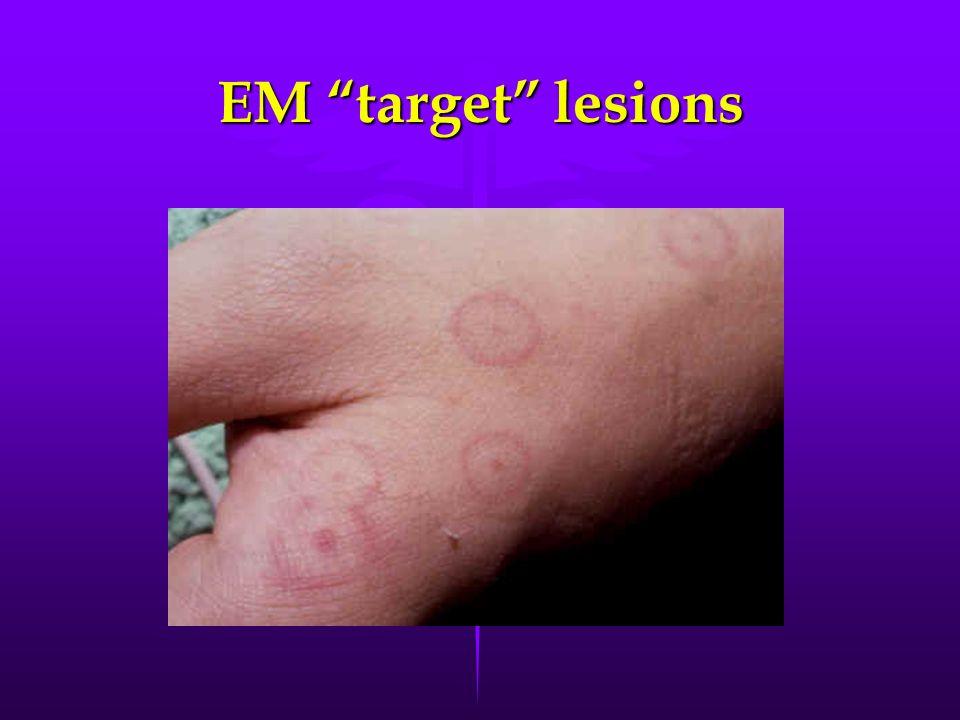 EM target lesions