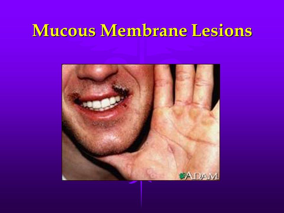 Mucous Membrane Lesions