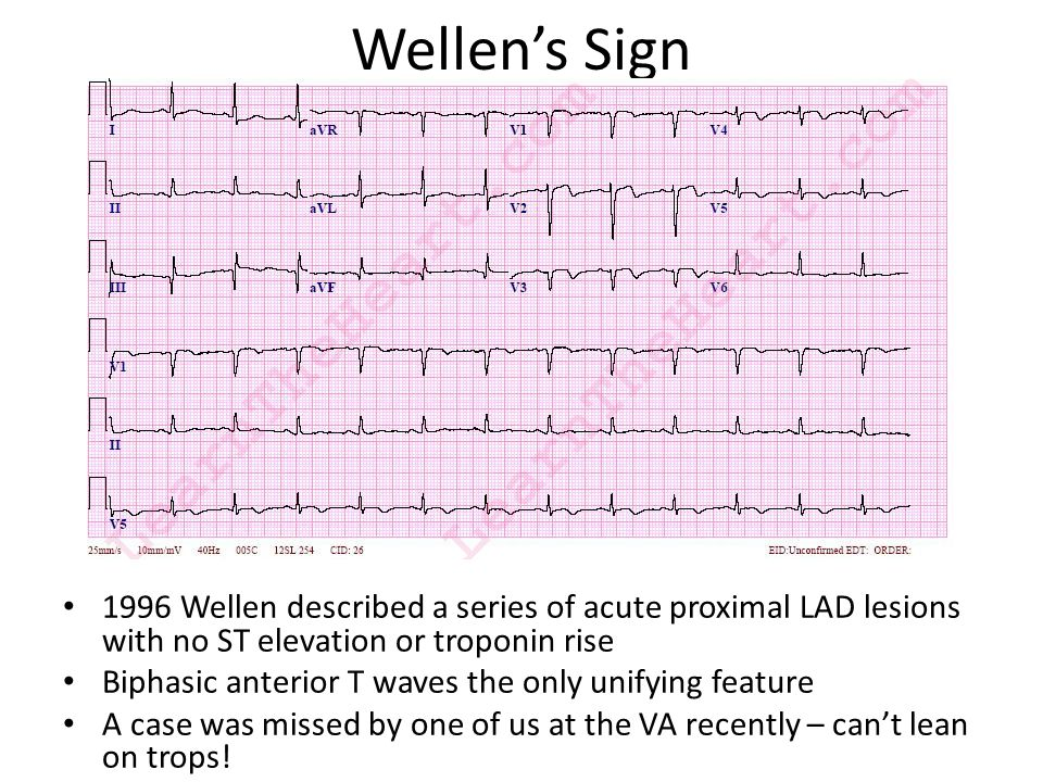 Wellen's Sign 1996 Wellen described a series of acute proximal LAD lesions with no ST elevation or troponin rise Biphasic anterior T waves the only un