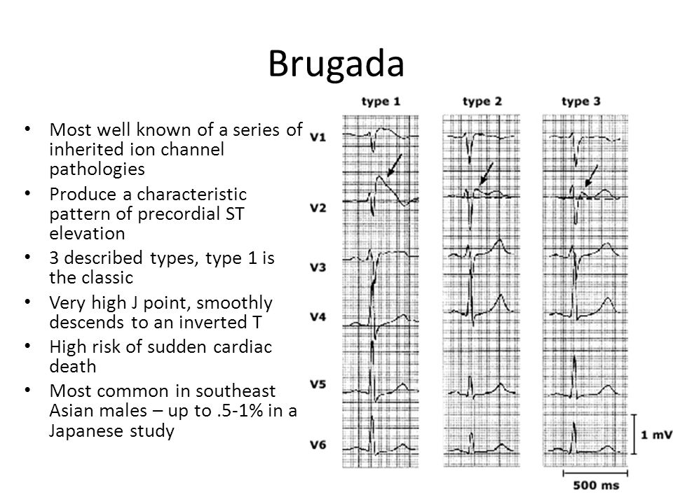 Brugada Most well known of a series of inherited ion channel pathologies Produce a characteristic pattern of precordial ST elevation 3 described types