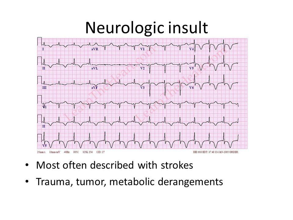 Neurologic insult Most often described with strokes Trauma, tumor, metabolic derangements