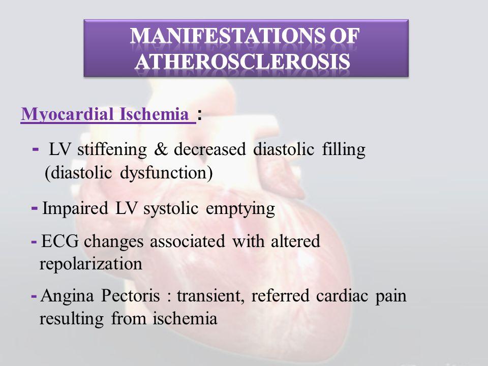 Myocardial Ischemia : - LV stiffening & decreased diastolic filling (diastolic dysfunction) - Impaired LV systolic emptying - ECG changes associated w