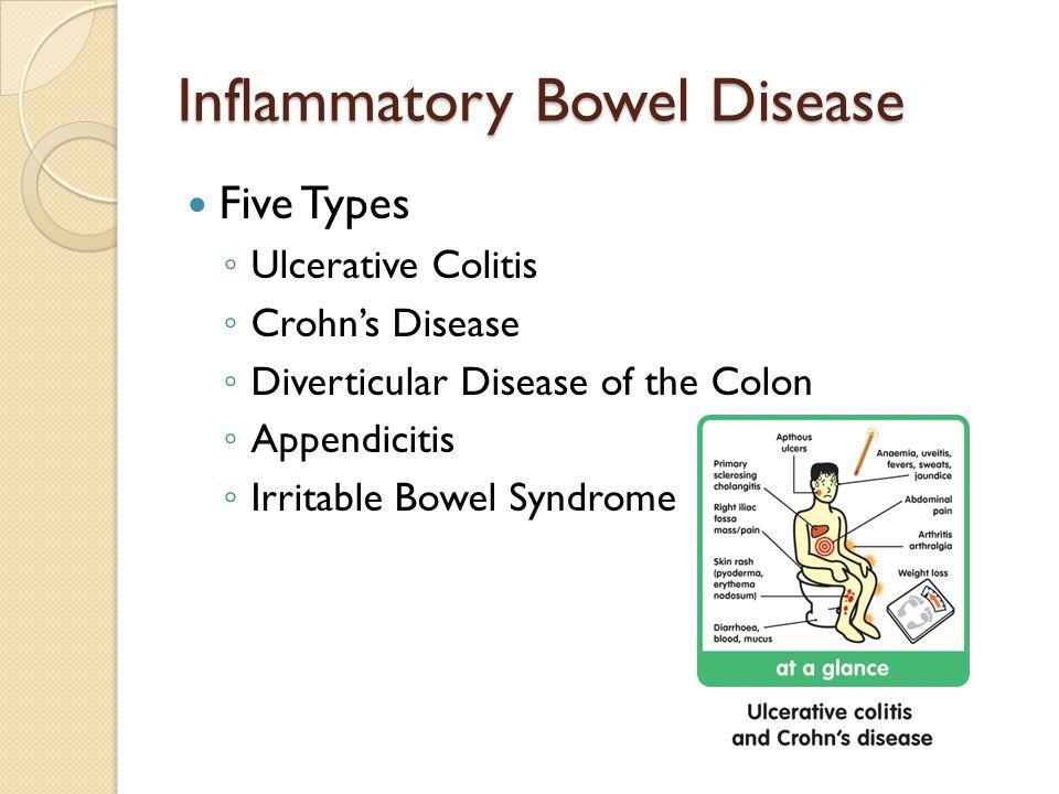 Inflammatory Bowel Disease Five Types ◦ Ulcerative Colitis ◦ Crohn's Disease ◦ Diverticular Disease of the Colon ◦ Appendicitis ◦ Irritable Bowel Syndrome