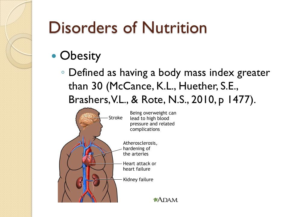 Disorders of Nutrition Obesity ◦ Defined as having a body mass index greater than 30 (McCance, K.L., Huether, S.E., Brashers, V.L., & Rote, N.S., 2010, p 1477).