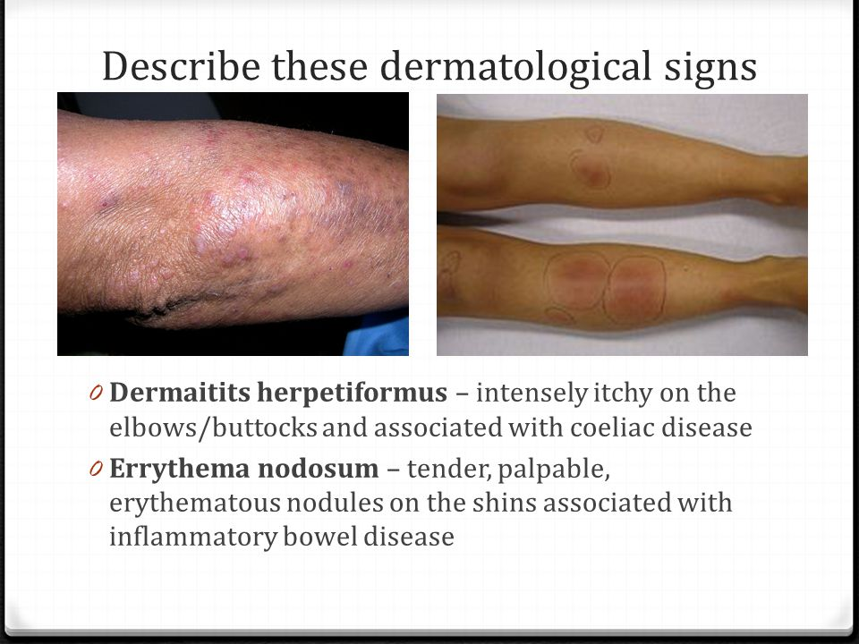 Describe these dermatological signs 0 Dermaitits herpetiformus – intensely itchy on the elbows/buttocks and associated with coeliac disease 0 Errythema nodosum – tender, palpable, erythematous nodules on the shins associated with inflammatory bowel disease