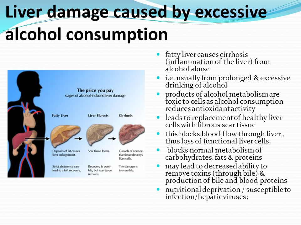 Liver damage caused by excessive alcohol consumption fatty liver causes cirrhosis (inflammation of the liver) from alcohol abuse i.e. usually from pro