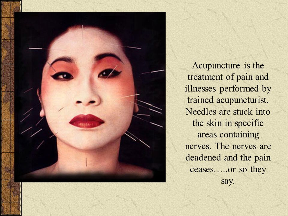Acupuncture is the treatment of pain and illnesses performed by trained acupuncturist. Needles are stuck into the skin in specific areas containing ne