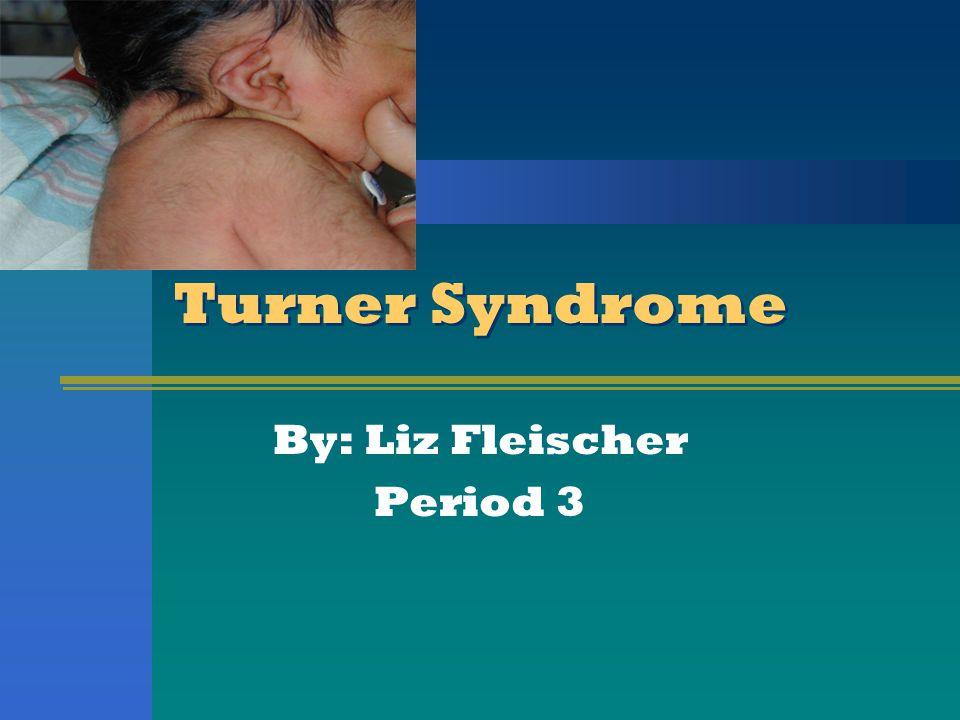 Turner Syndrome By: Liz Fleischer Period 3
