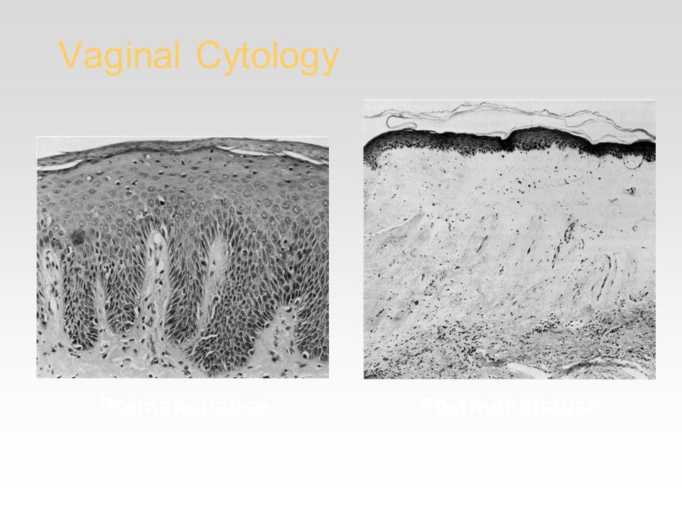 Vaginal Cytology PremenopausePostmenopause