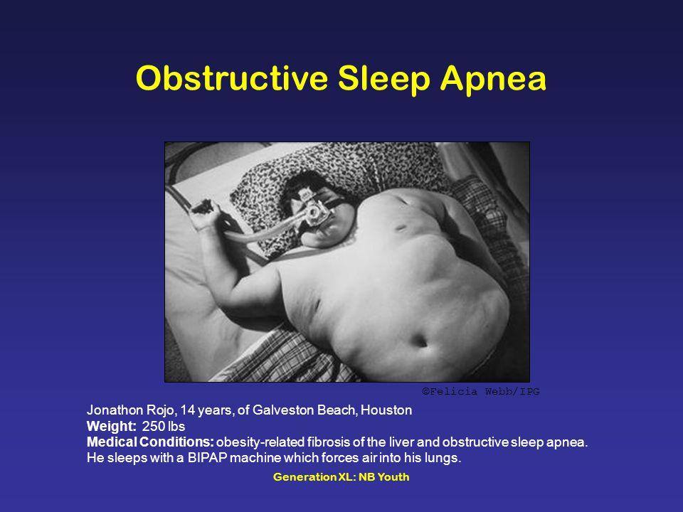 Generation XL: NB Youth ©Felicia Webb/IPG Obstructive Sleep Apnea Jonathon Rojo, 14 years, of Galveston Beach, Houston Weight: 250 lbs Medical Conditions: obesity-related fibrosis of the liver and obstructive sleep apnea.
