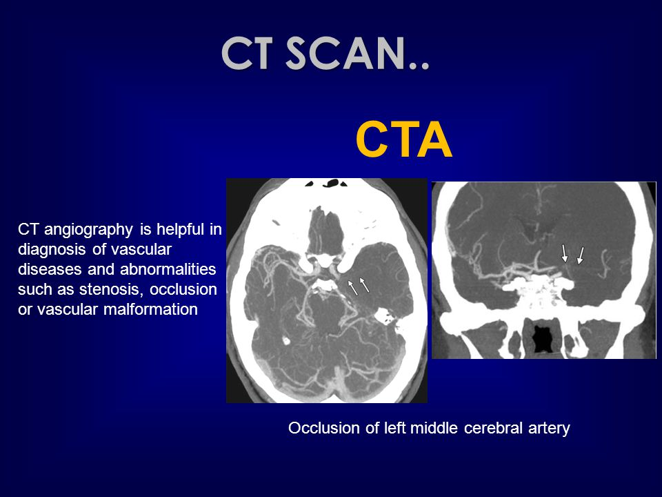 CT SCAN.. CTA CT angiography is helpful in diagnosis of vascular diseases and abnormalities such as stenosis, occlusion or vascular malformation Occlu