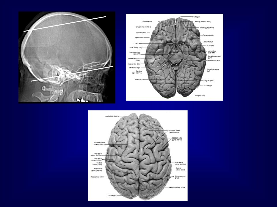 Diffuse axonal injury Axonal disruption from shearing forces of acceleration/deceleration Patients are unconscious with severe head injury Common locations: - Lobar gray/white matter junction - Corpus callosum - Dorsolateral brain stem