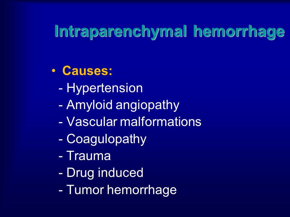 Intraparenchymal hemorrhage Causes: - Hypertension - Amyloid angiopathy - Vascular malformations - Coagulopathy - Trauma - Drug induced - Tumor hemorr