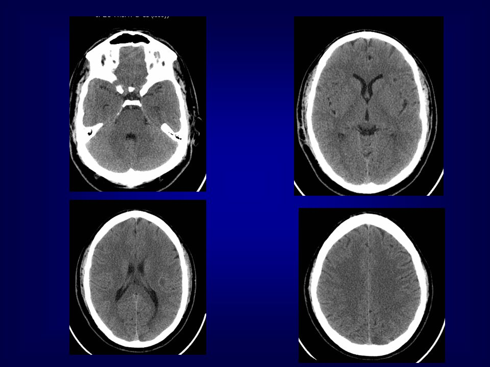 Diffuse axonal injury Initial CT is often normal.Petechial hemorrhage develops later.