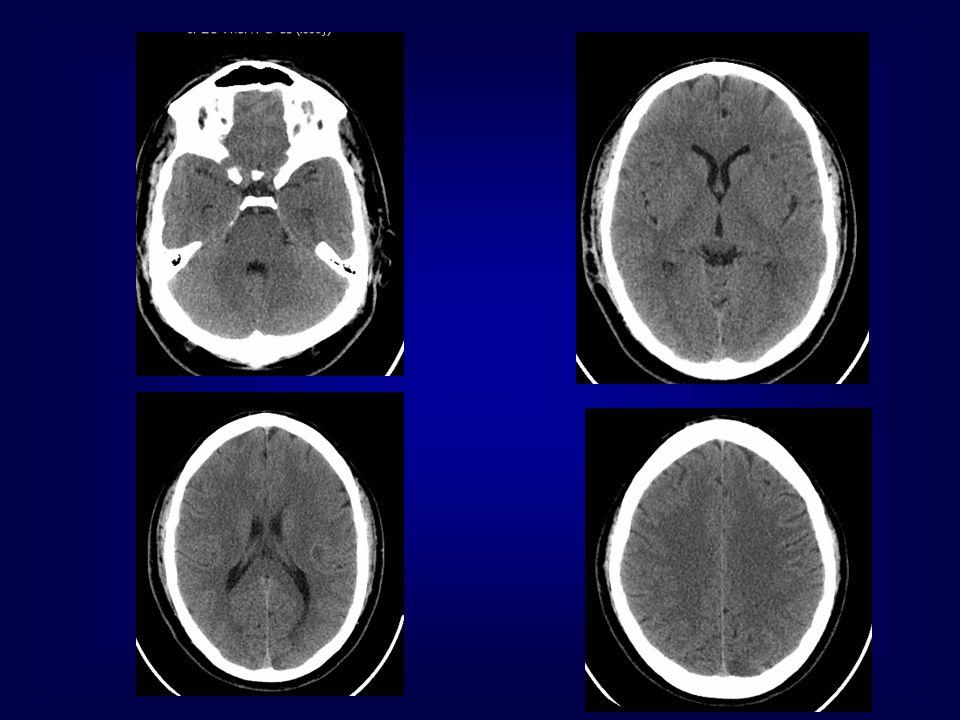 NON- ENHANCED CT STUDY