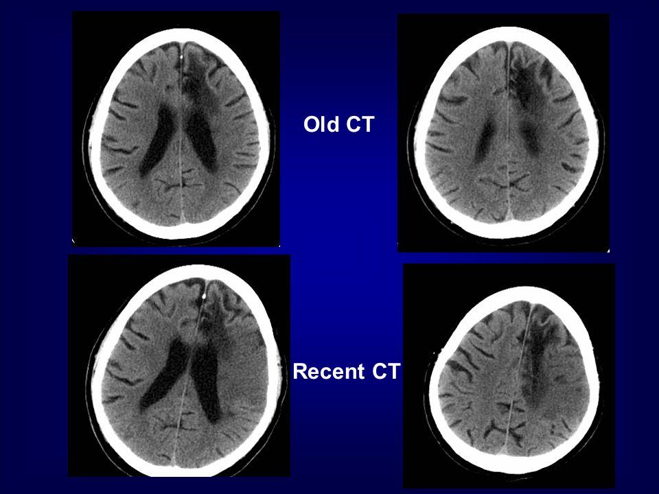 Old CT Recent CT