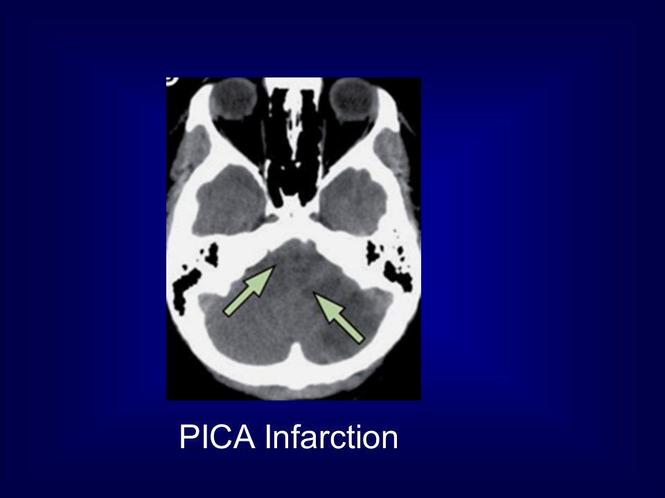 PICA Infarction