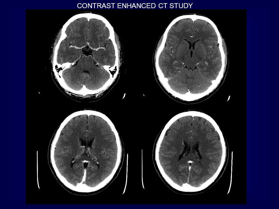 Spectrum of CT findings 10-30% of cases of CVT are negative on either unenhanced or contrast-enhanced CT Highly suspicious cases should be furtherly evaluated with CT venography or MRI