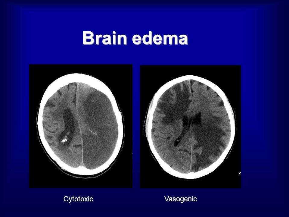 Brain edema CytotoxicVasogenic