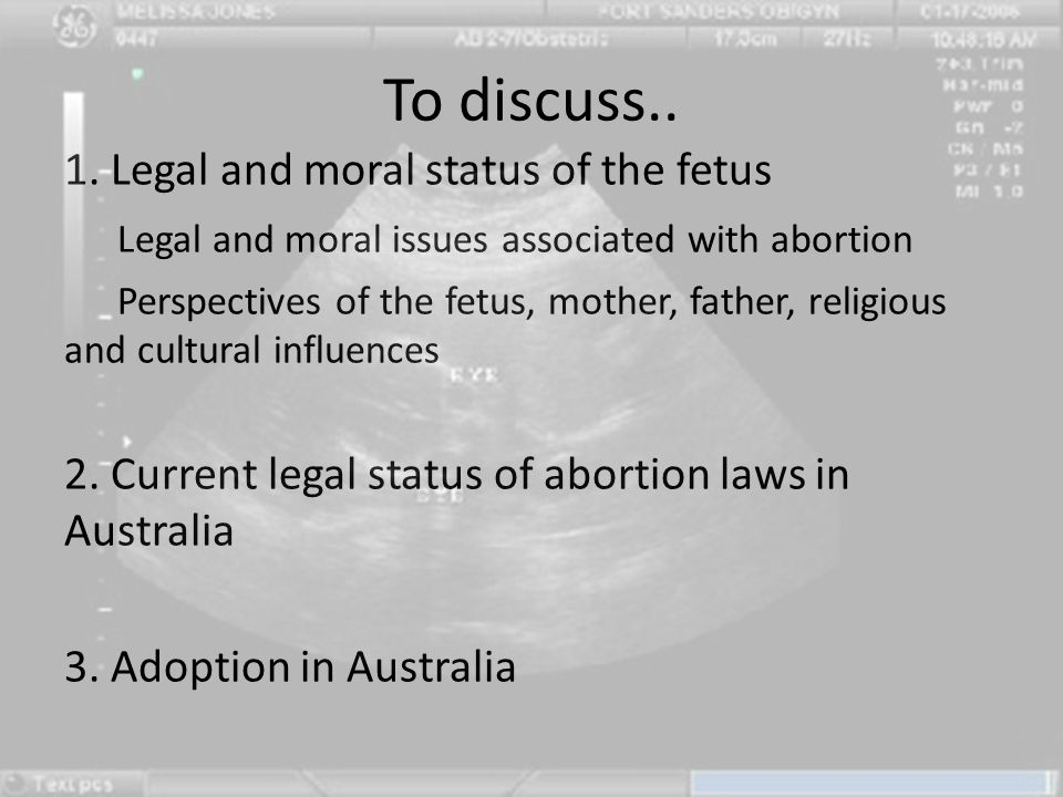 To discuss.. 1. Legal and moral status of the fetus Legal and moral issues associated with abortion Perspectives of the fetus, mother, father, religio
