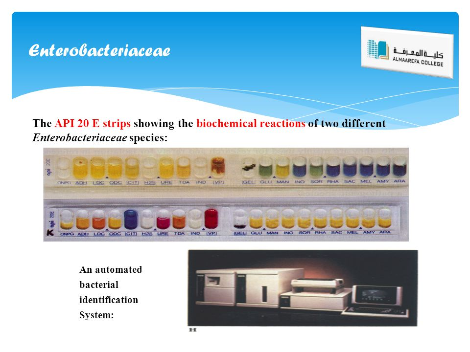The API 20 E strips showing the biochemical reactions of two different Enterobacteriaceae species: An automated bacterial identification System: Enter