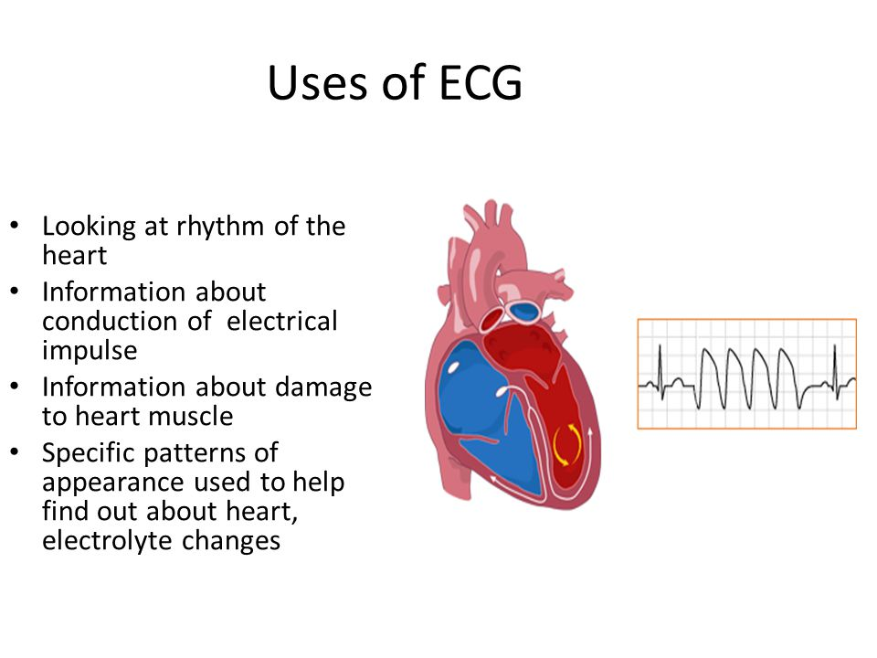 Uses of ECG Looking at rhythm of the heart Information about conduction of electrical impulse Information about damage to heart muscle Specific patter