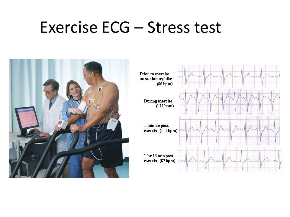Exercise ECG – Stress test