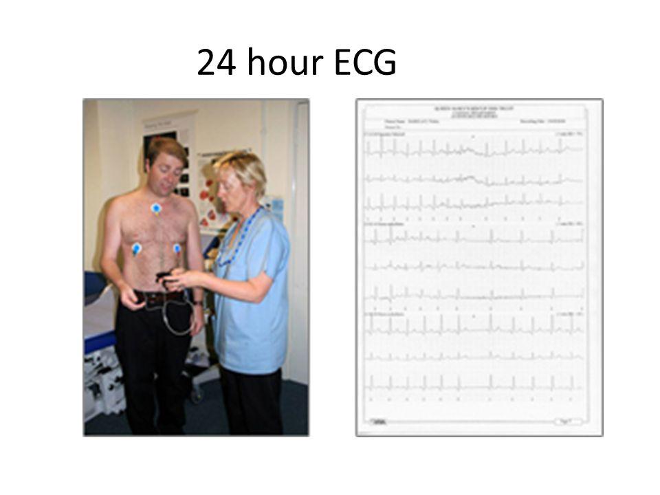 24 hour ECG