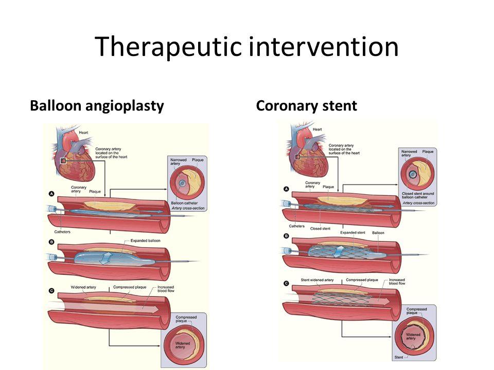 Therapeutic intervention Balloon angioplastyCoronary stent