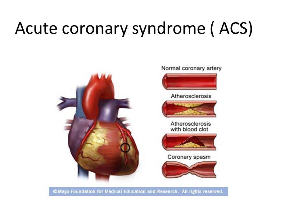Acute coronary syndrome ( ACS)