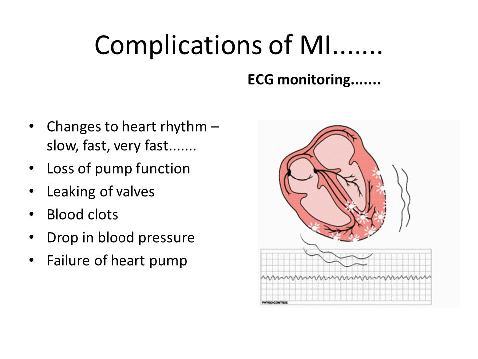 Complications of MI....... Changes to heart rhythm – slow, fast, very fast....... Loss of pump function Leaking of valves Blood clots Drop in blood pr