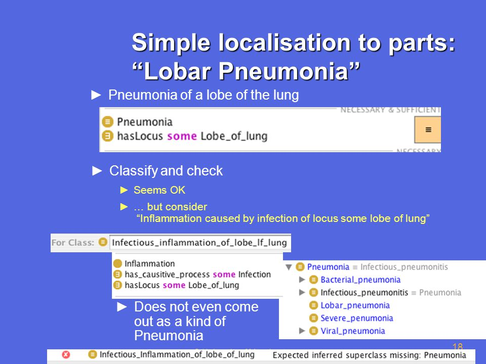 © University of Manchester 18 Simple localisation to parts: Lobar Pneumonia ►Pneumonia of a lobe of the lung ►Classify and check ►Seems OK ►… but consider Inflammation caused by infection of locus some lobe of lung ►Does not even come out as a kind of Pneumonia