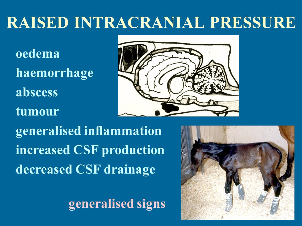 RAISED INTRACRANIAL PRESSURE oedema haemorrhage abscess tumour generalised inflammation increased CSF production decreased CSF drainage generalised signs