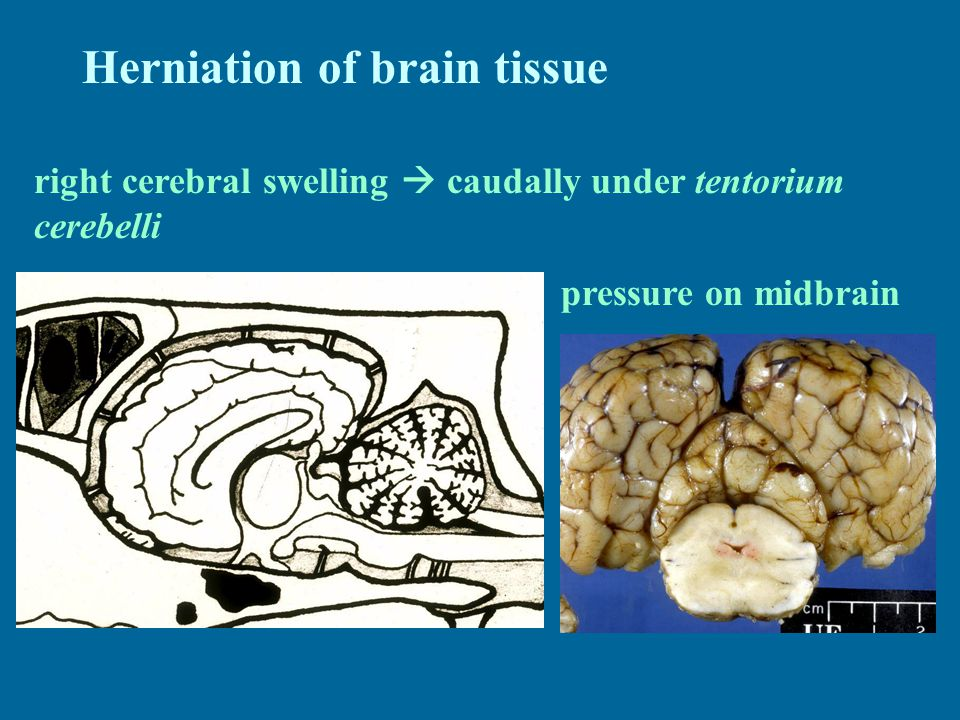 Herniation of brain tissue right cerebral swelling  caudally under tentorium cerebelli pressure on midbrain