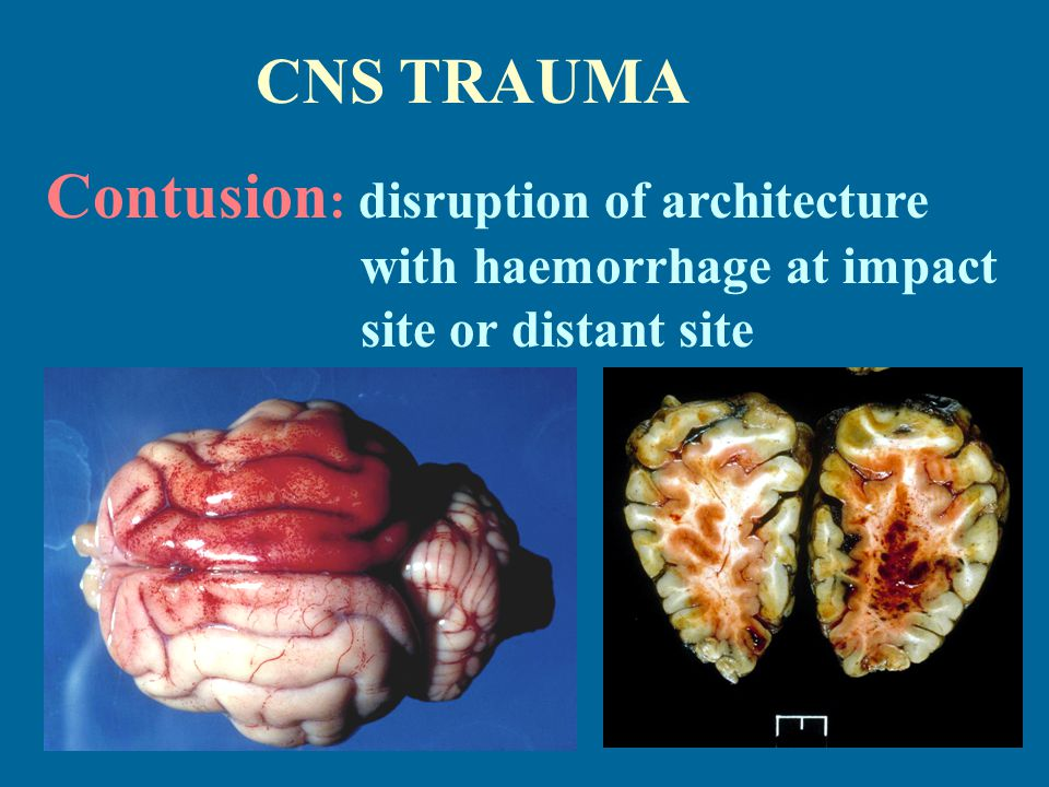 CNS TRAUMA Contusion : disruption of architecture with haemorrhage at impact site or distant site
