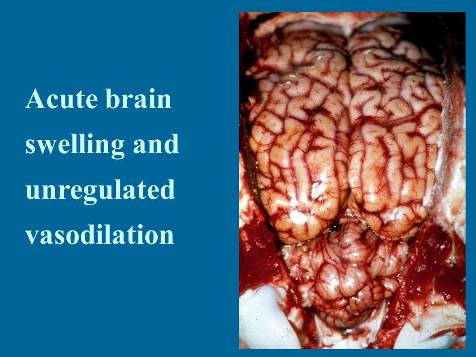 Acute brain swelling and unregulated vasodilation