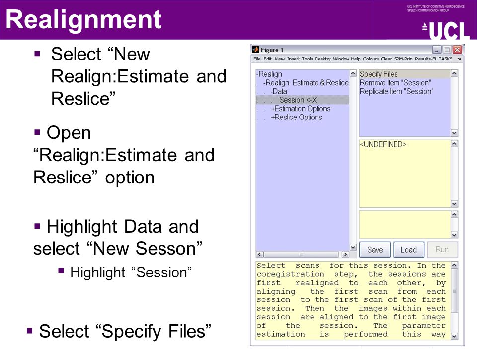 """ Select """"New Realign:Estimate and Reslice"""" Realignment  Open """"Realign:Estimate and Reslice"""" option  Highlight Data and select """"New Sesson""""  Highli"""