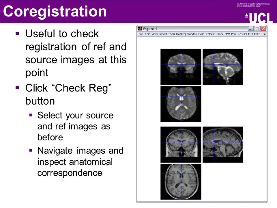 Useful to check registration of ref and source images at this point  Click Check Reg button  Select your source and ref images as before  Navigate images and inspect anatomical correspondence Coregistration