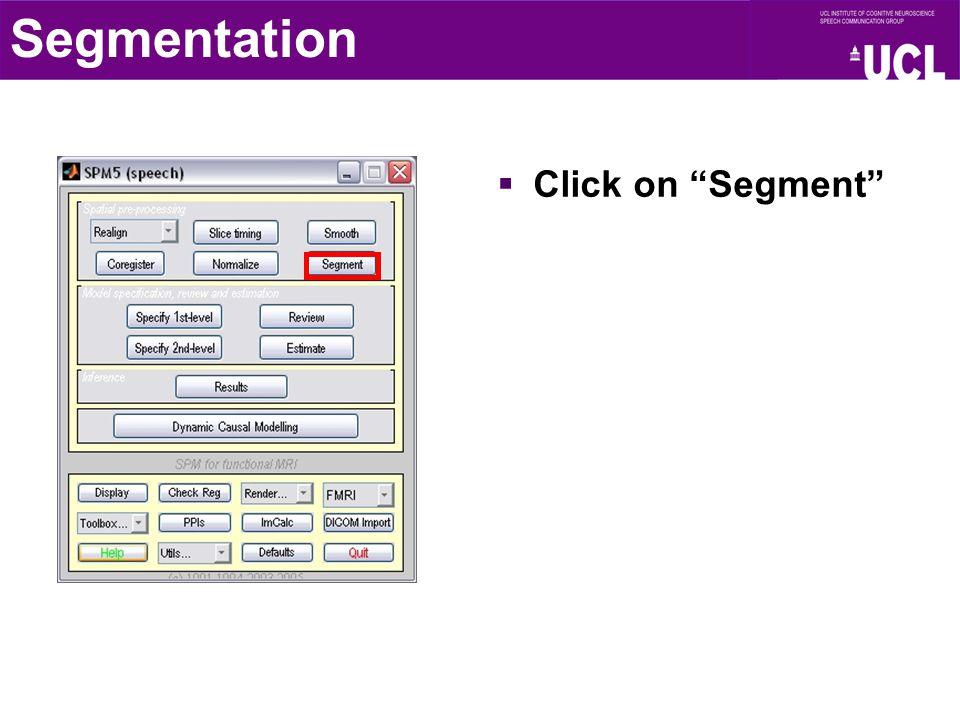 """Segmentation  Click on """"Segment"""""""
