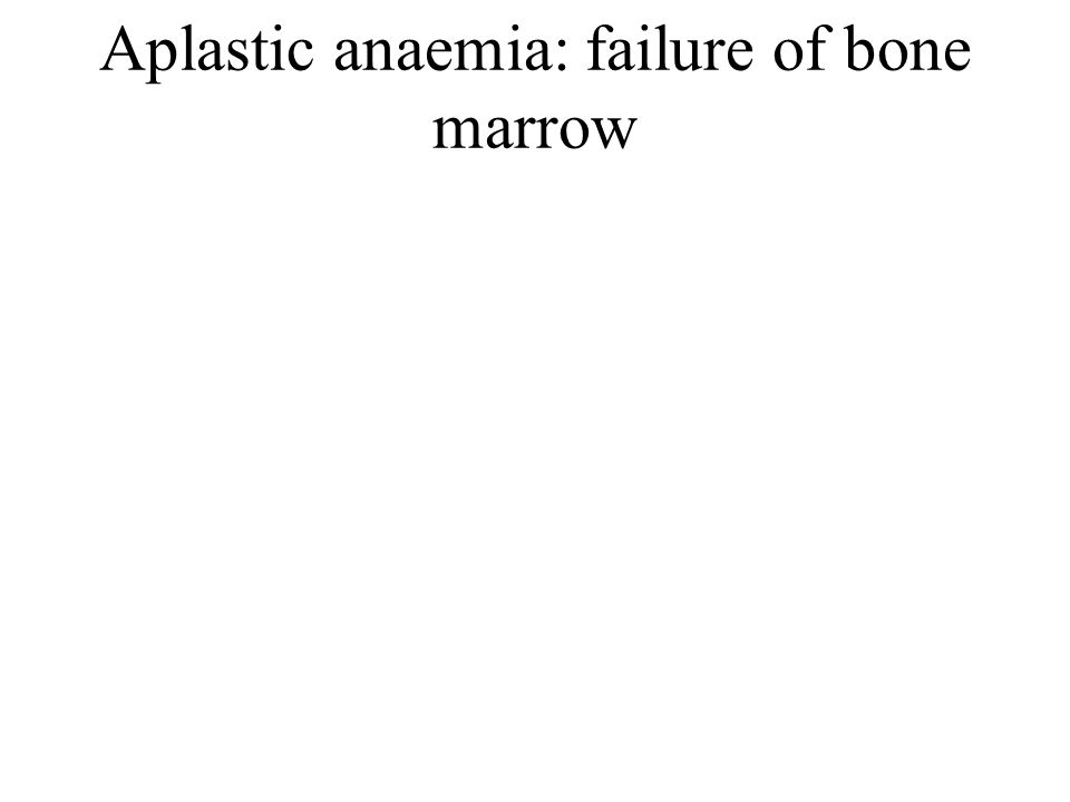 Aplastic anaemia: failure of bone marrow
