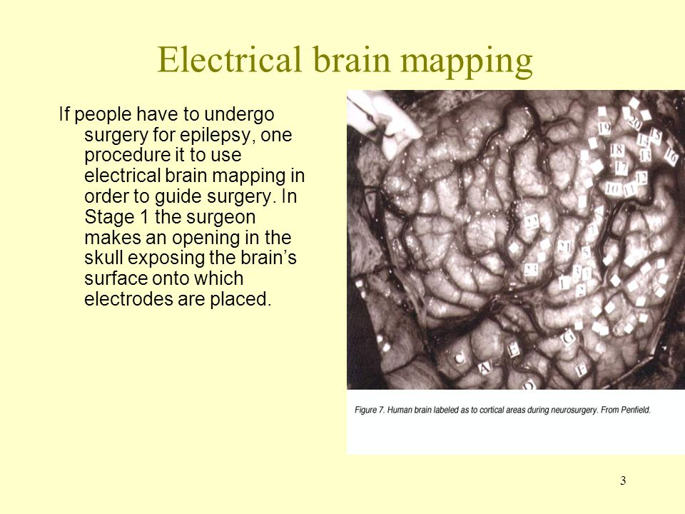 3 Electrical brain mapping If people have to undergo surgery for epilepsy, one procedure it to use electrical brain mapping in order to guide surgery.