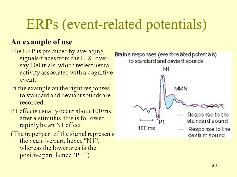 30 ERPs (event-related potentials) An example of use The ERP is produced by averaging signals/traces from the EEG over say 100 trials, which reflect neural activity associated with a cognitive event.