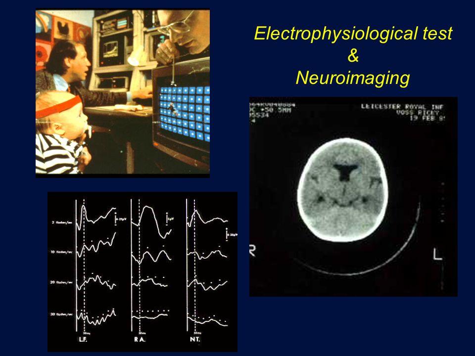 Electrophysiological test & Neuroimaging