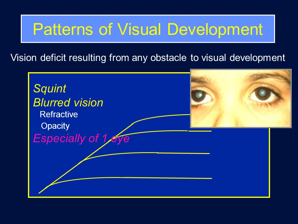 Vision deficit resulting from any obstacle to visual development Squint Blurred vision Refractive Opacity Especially of 1 eye