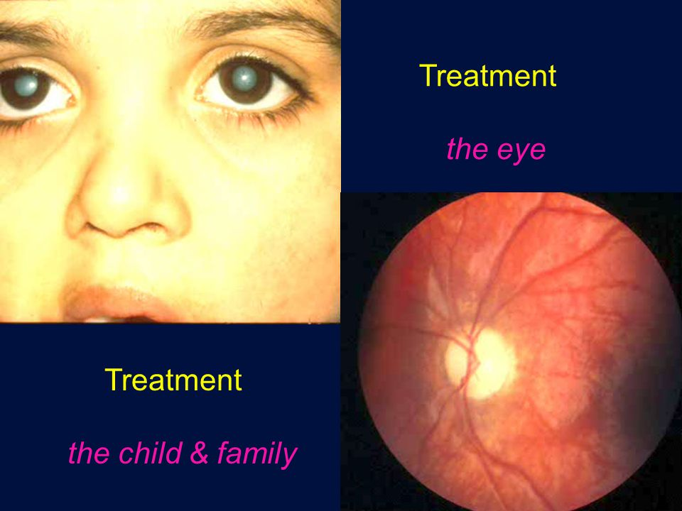 Treatment the eye Treatment the child & family