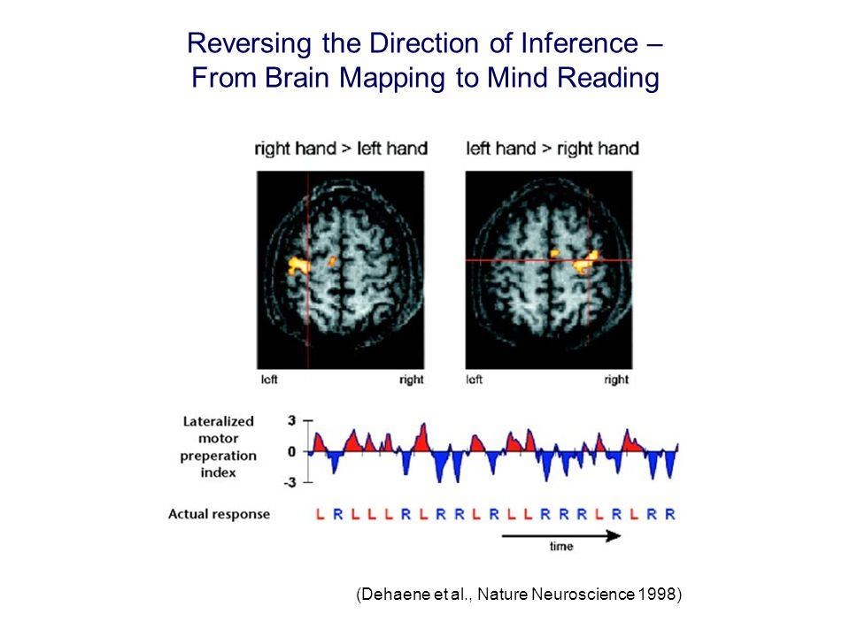 Reversing the Direction of Inference – From Brain Mapping to Mind Reading (Dehaene et al., Nature Neuroscience 1998)