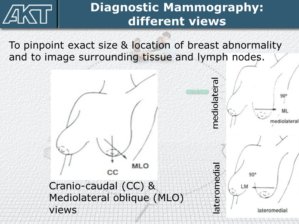 Diagnostic Mammography: different views To pinpoint exact size & location of breast abnormality and to image surrounding tissue and lymph nodes. Crani
