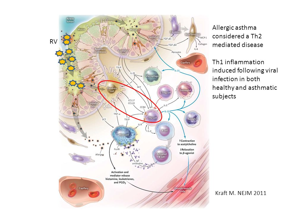 Kraft M. NEJM 2011 RV Allergic asthma considered a Th2 mediated disease Th1 inflammation induced following viral infection in both healthy and asthmat