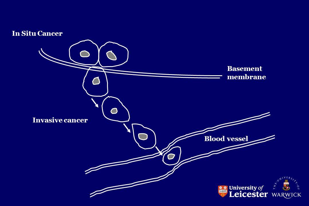 In Situ Cancer Basement membrane Invasive cancer Blood vessel